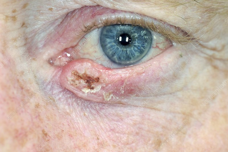 Squamous cell cancer on the eyelid