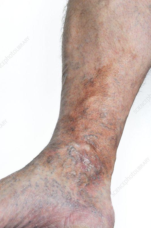 Varicose eczema on the leg