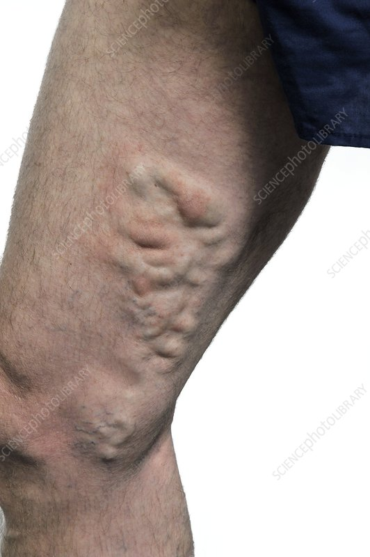 Varicose veins on the thigh