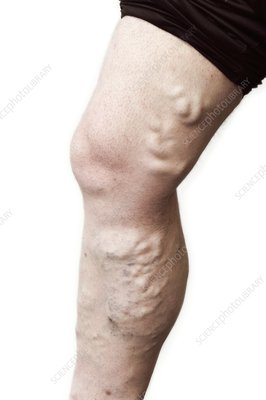 Varicose veins in the leg