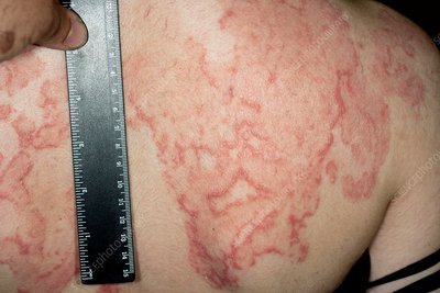 Psoriasis on the back before treatment