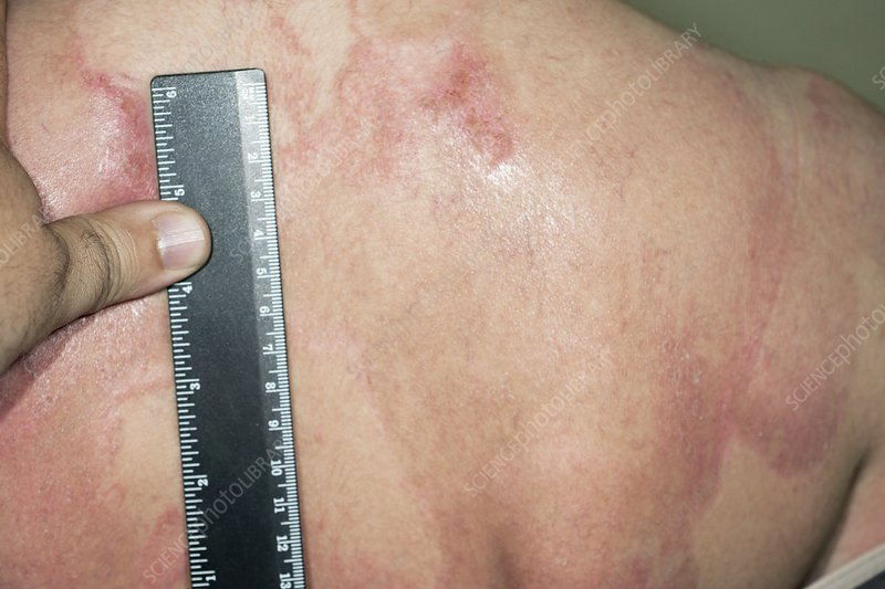 Psoriasis on the back during treatment