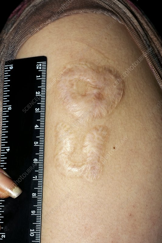 Scar after laser removal of tattoo