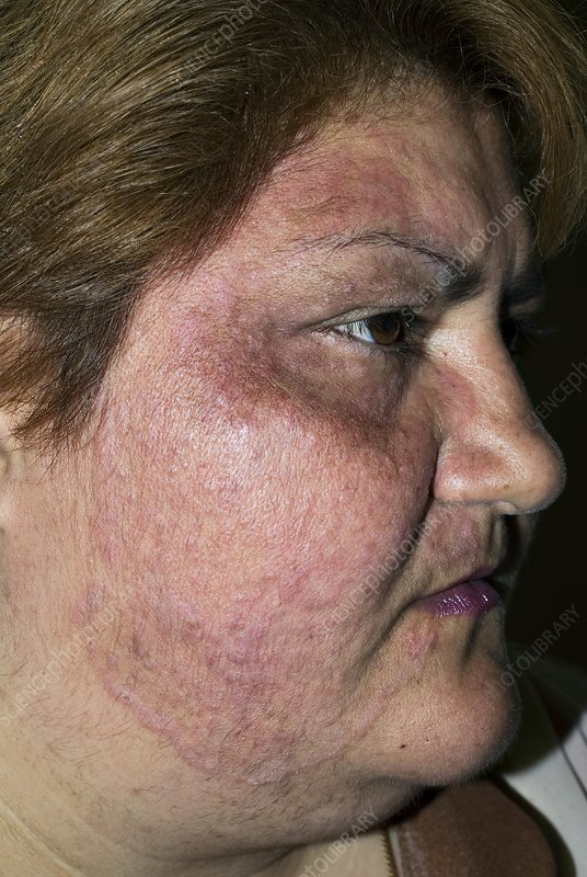 Tinea fungal infection on the face - Stock Image - C010/3370