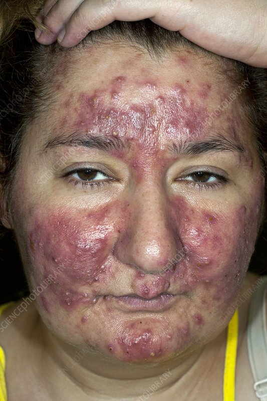 Acne rosacea on the face in a woman - Stock Image C010
