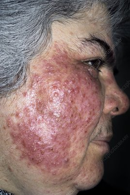Acne rosacea on the face in a woman