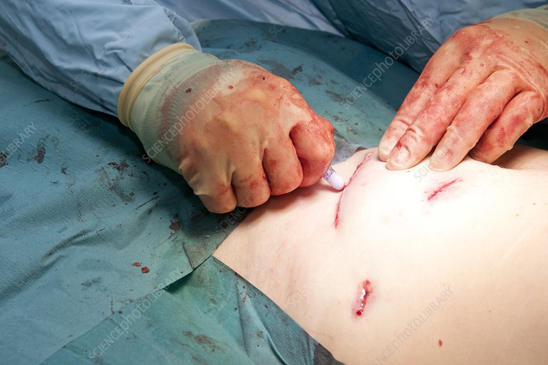 Sealing keyhole surgery incisions