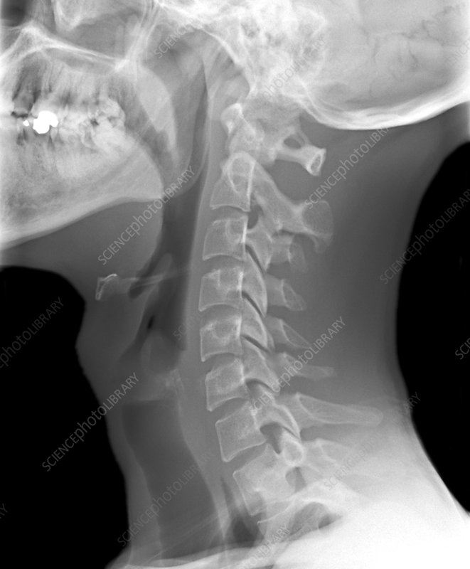 Normal neck, X-ray