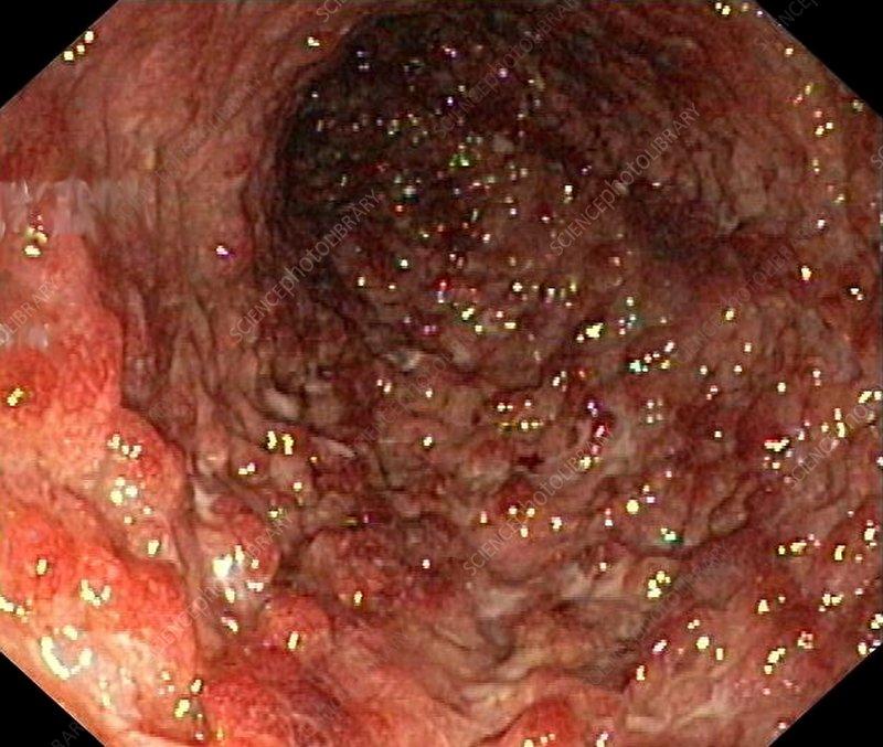 Types Of Sigmoid Colon Polyps - jefffbhodges's soup