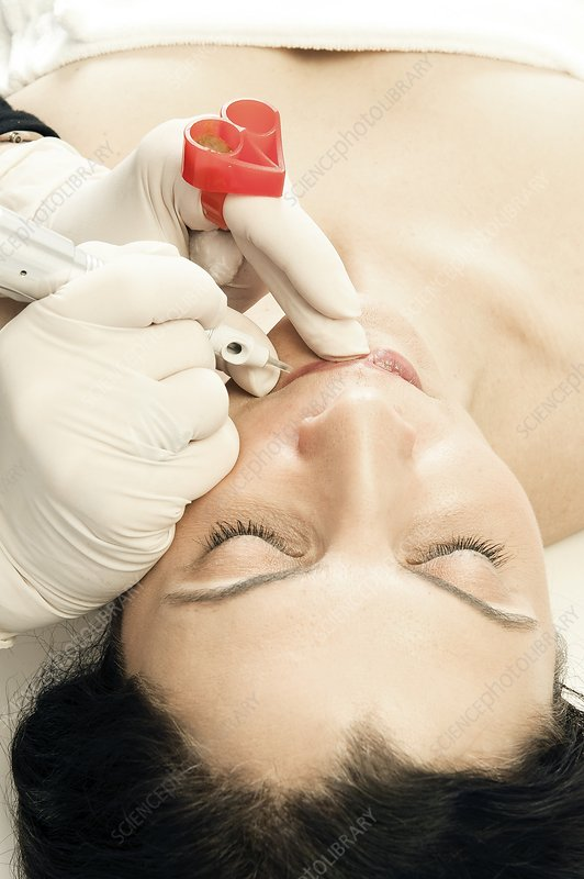 Micropigmentation cosmetic procedure