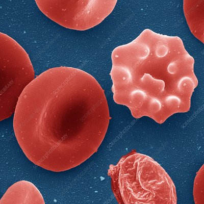 Malaria infected red blood cell, SEM