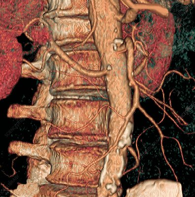 Spine and aorta, 3D CT scan