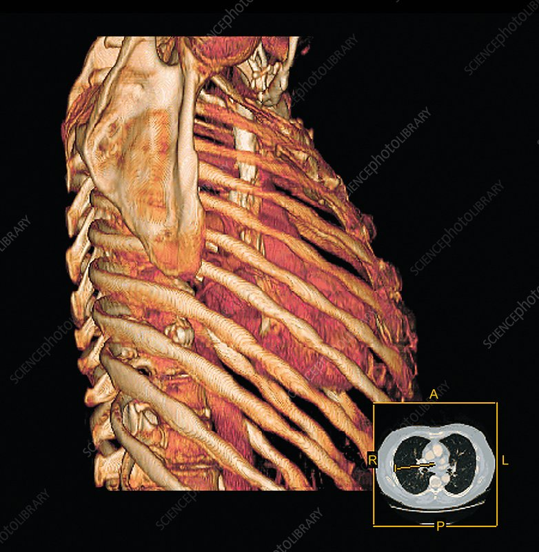 Ribcage and heart, 3D CT scan