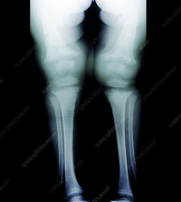 Childhood rickets, X-ray