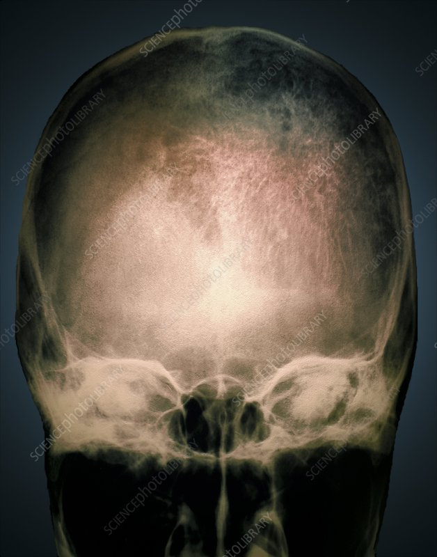 Osteoporosis in the skull, X-ray