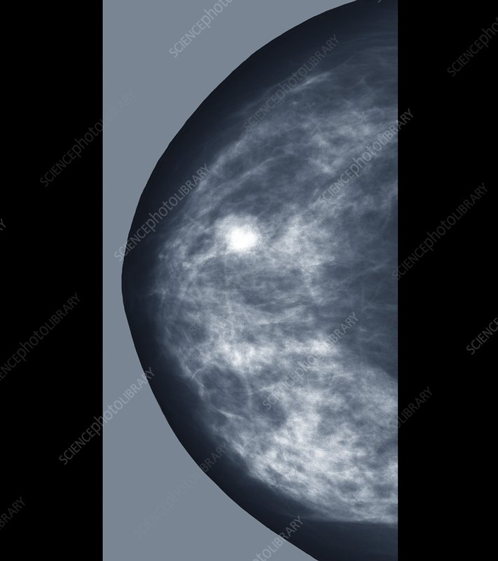 Breast lump, X-ray