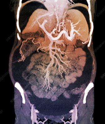 Chronic liver disease, CT scan