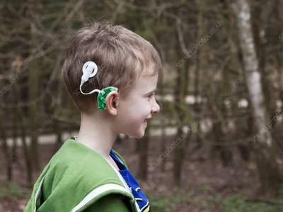 Bilateral cochlear implants