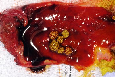 Excised gallbladder and gallstones