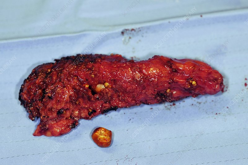 Excised gallbladder