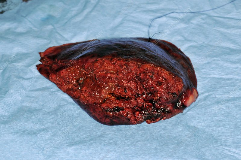 Excised liver