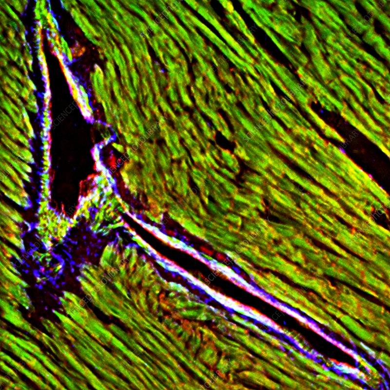Heart tissue, fluorescence micrograph