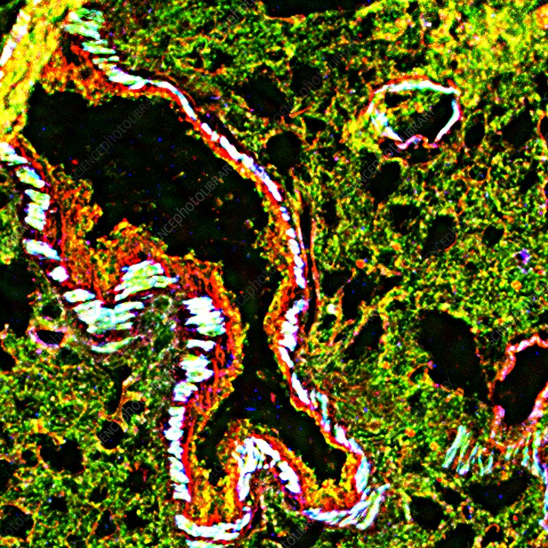 Lung tissue, fluorescence micrograph