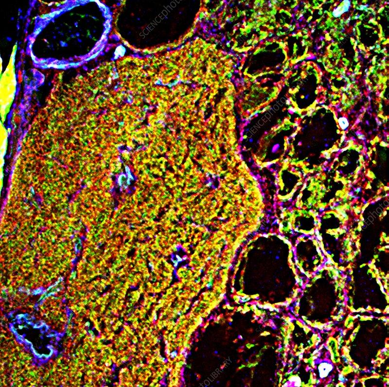 Throat tissue, fluorescence micrograph