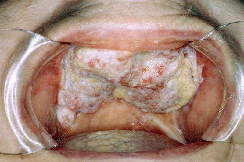 Oral wart growths