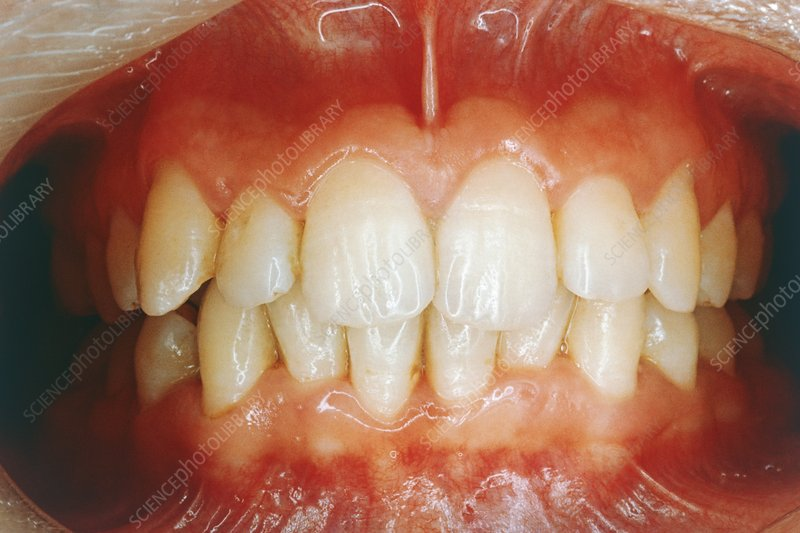 Treated gum inflammation