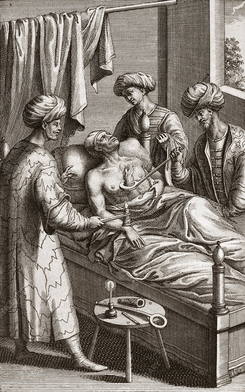 Physicians performing hot cupping, 18th C