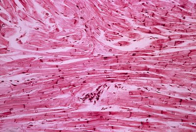 Cardiac muscle, light micrograph