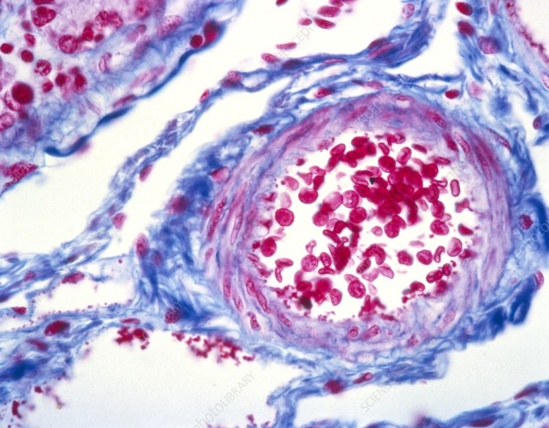 Vein cross-section, light micrograph