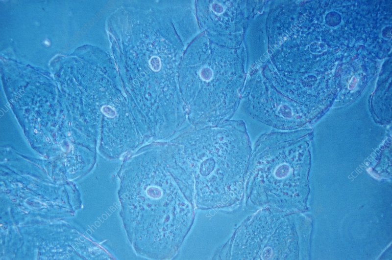 Mouth epithelial cells, light micrograph