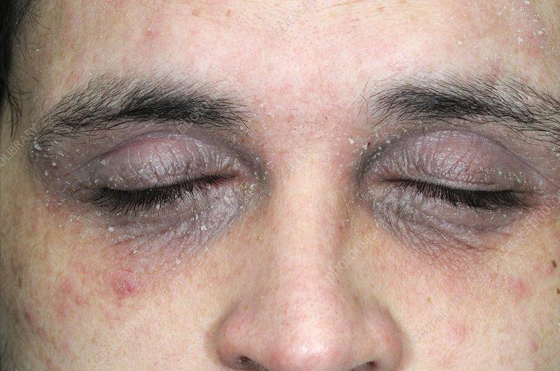eczema eyelids - photo #37