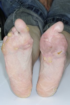 Feet deformities from meningitis