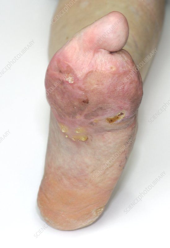 Foot deformity from meningitis