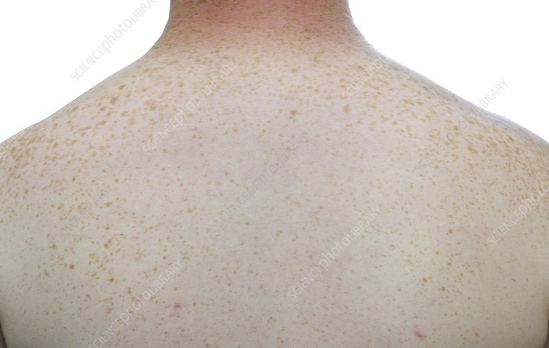 Freckles on the skin of the back