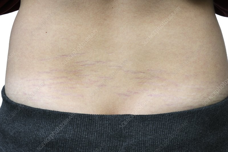 Striae growth marks on the skin