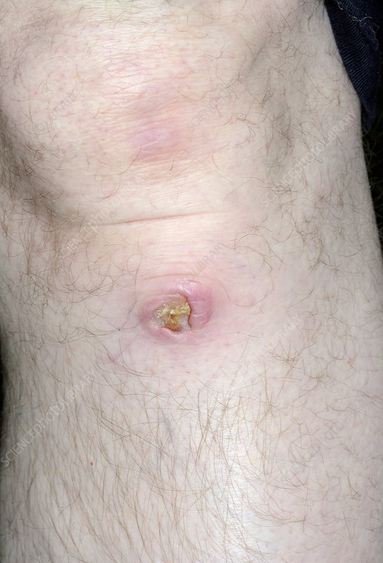 Ulcer below the knee
