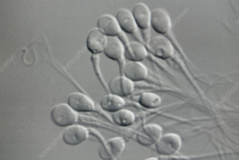 IVF sperm selection, light micrograph