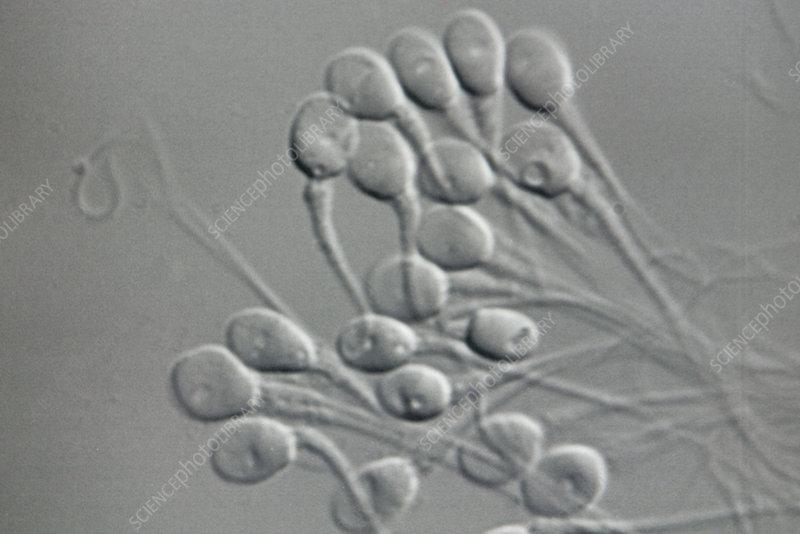 фото семенная жидкость
