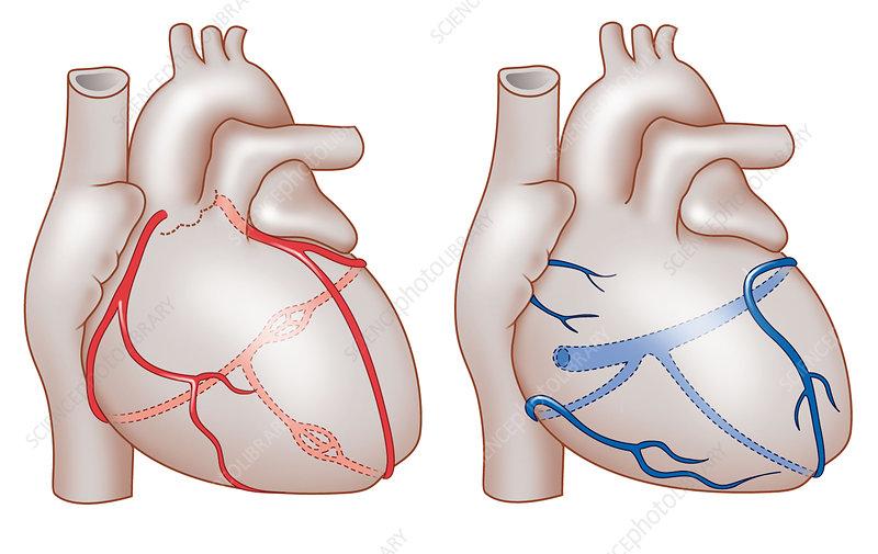 Heart's coronary blood vessels, artwork