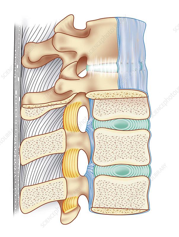 Spinal column anatomy, artwork