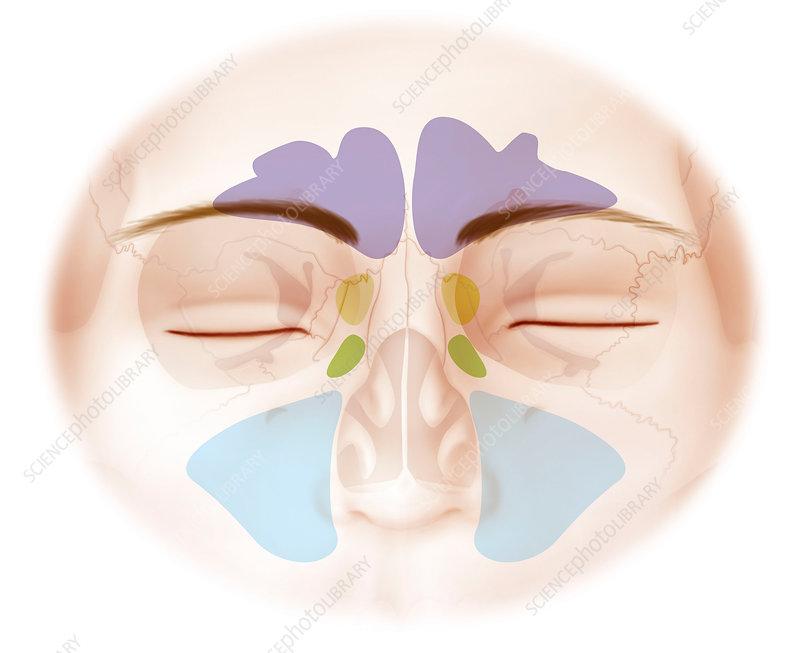 Paranasal sinuses, artwork