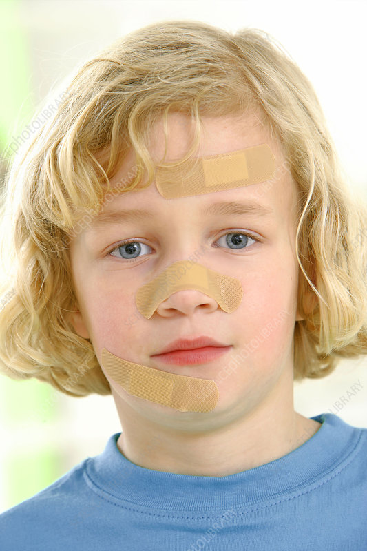 Boy with plasters on his face