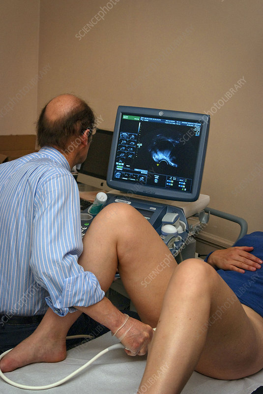 Cost of vaginal ultrasound