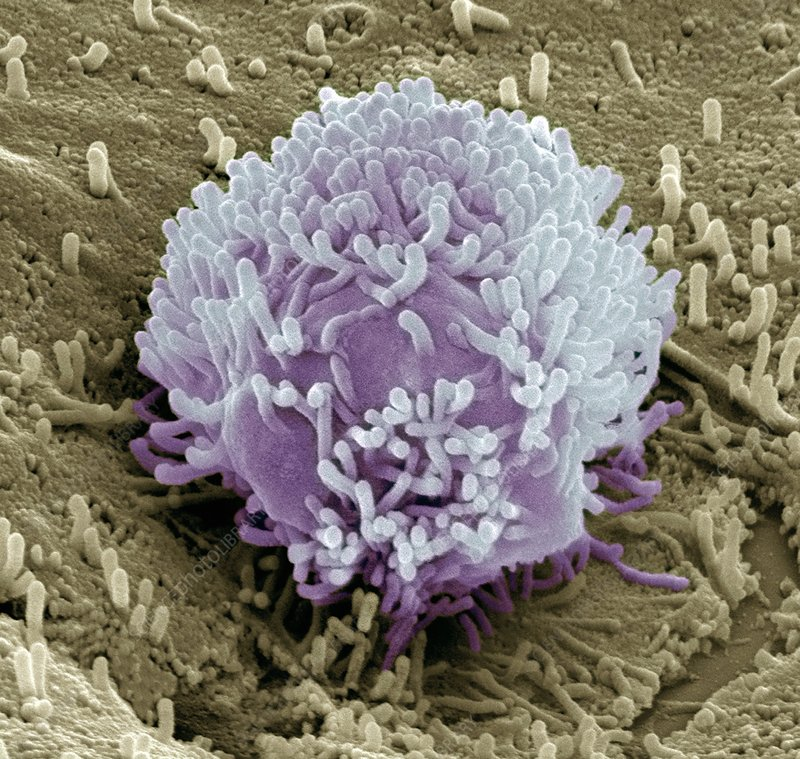 Colorectal cancer cell