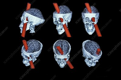 Phineas Gage brain reconstruction