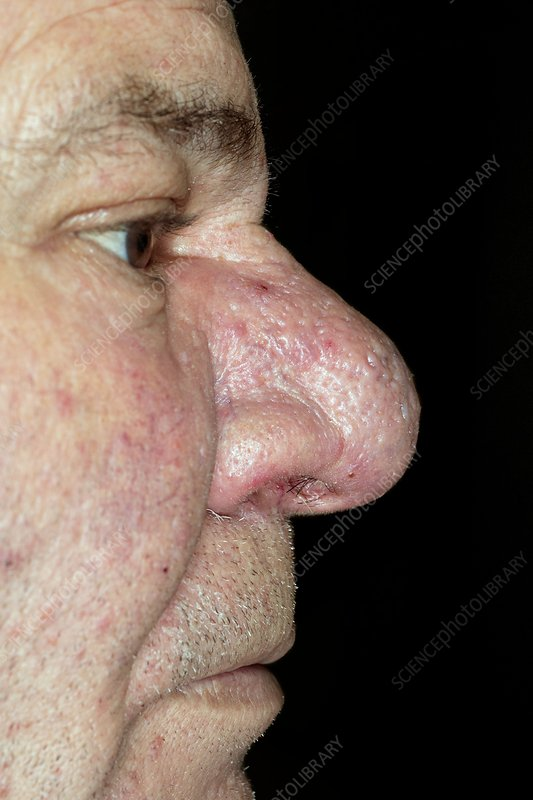 Rhynophyma of the nose